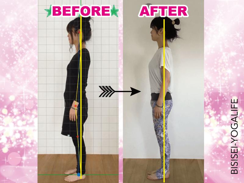 bisisei-before-after-saori,ストレートネック,冷え性,姿勢
