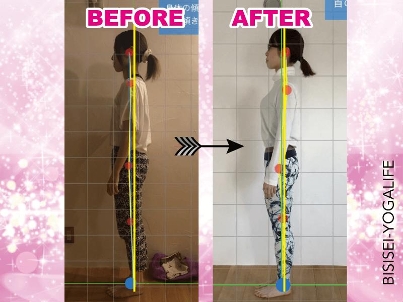 bisisei-yogalife-before-after-eri,巻き肩,姿勢,